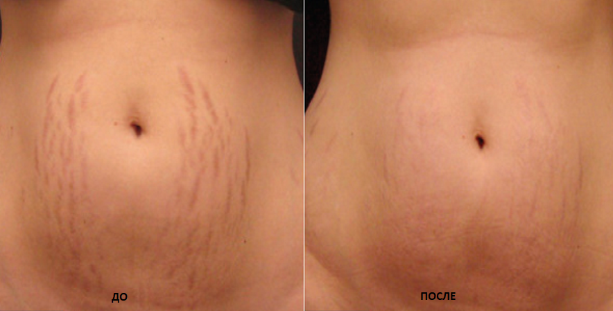 before-and-after-stretch-marks