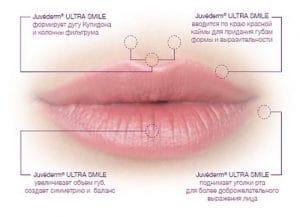 эффект увеличения губ
