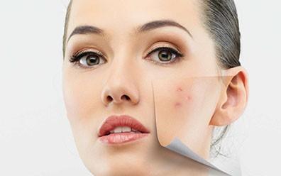 Дрожжевая маска для лица от прыщей рецепт дерматолога отзывы