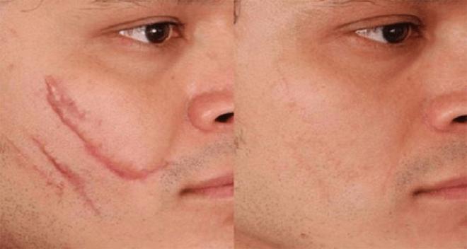 удаление волос на лице форум