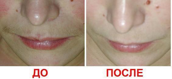 Сколько стоит лазерная эпиляция усов