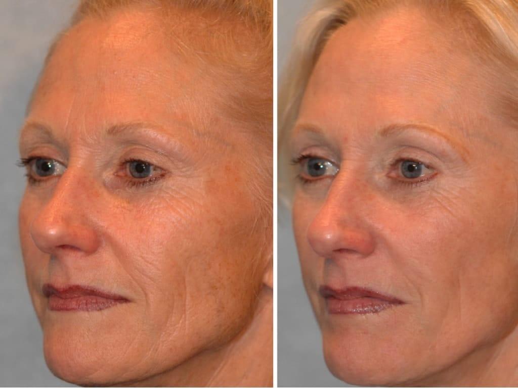 лазерное омоложение лица  до и после