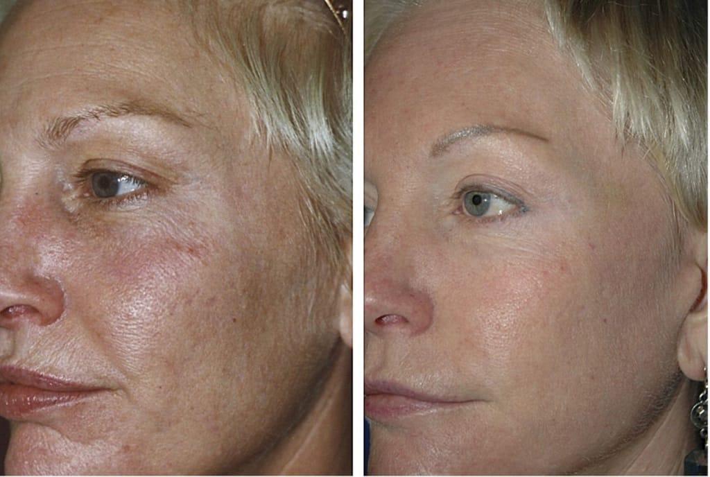 Уход после фракционного лазерного омоложение кожи лица