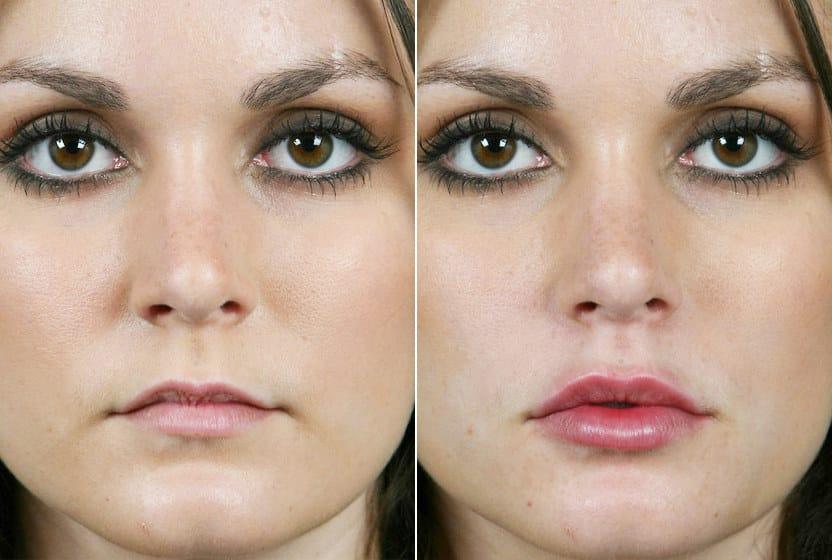 фото до и после введения препарата в губы