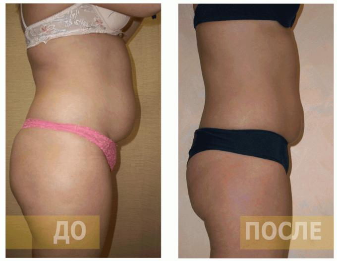 фото до и после при избыточном весе