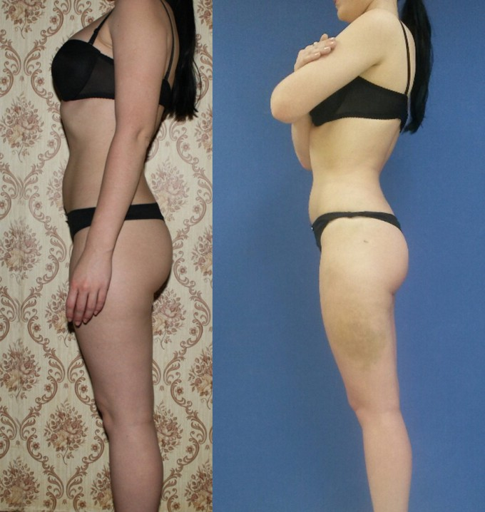 Фото до и после процедуры живота и ног