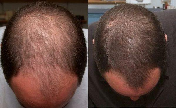alopeciya