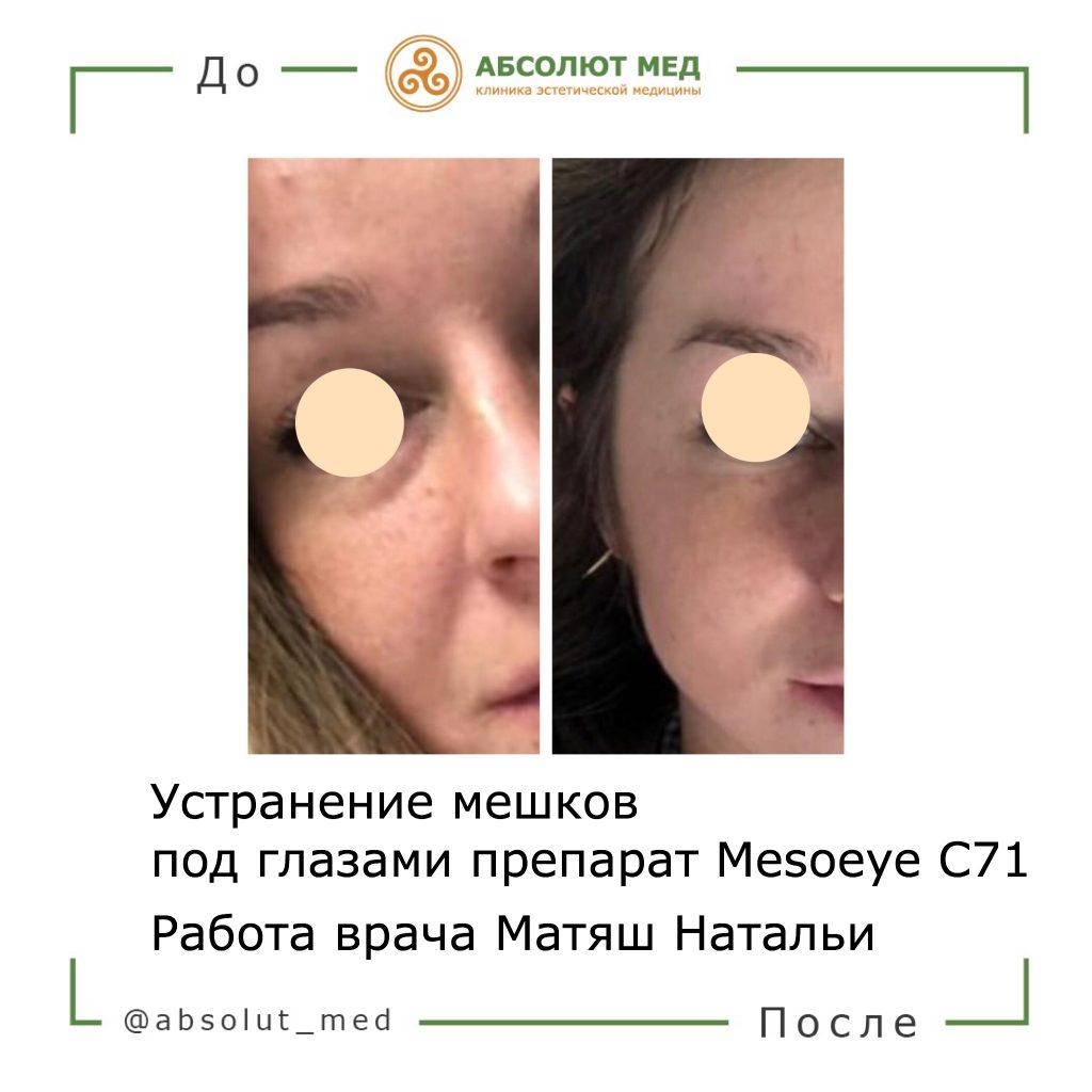 процедура мезоай фото до и после