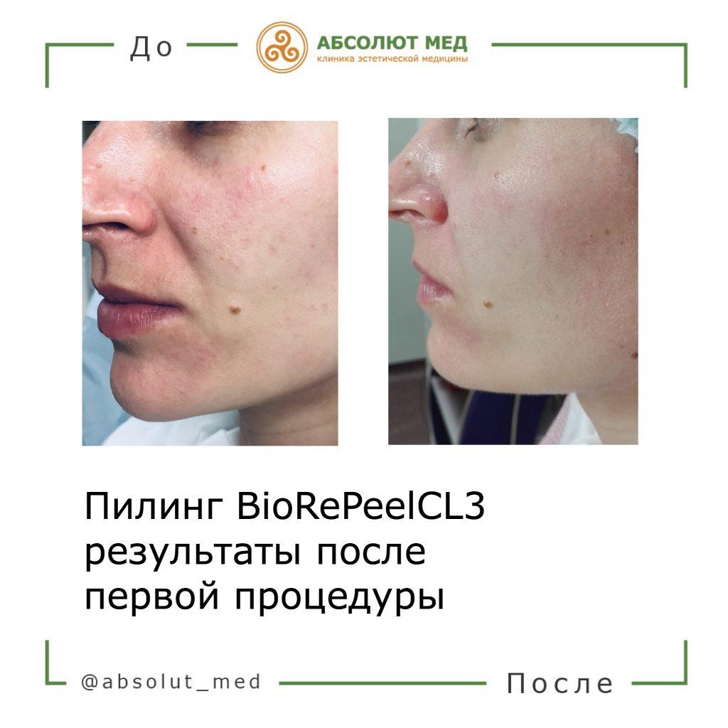 до и после процедуры биорепил