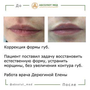 результат увеличения губ до и после