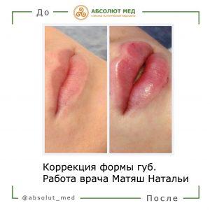 пример увеличения губ гиалуроновой кислотой
