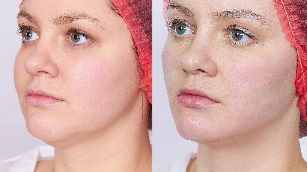 до и после фото Mesosculpt C71