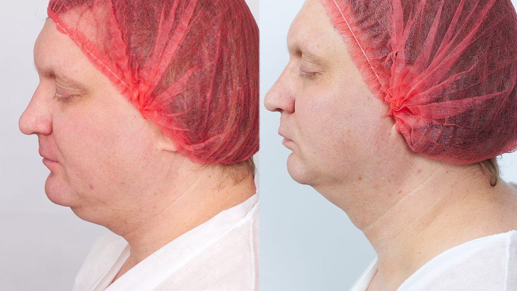 фото мужчины после процедуры Мезоскульпт C71