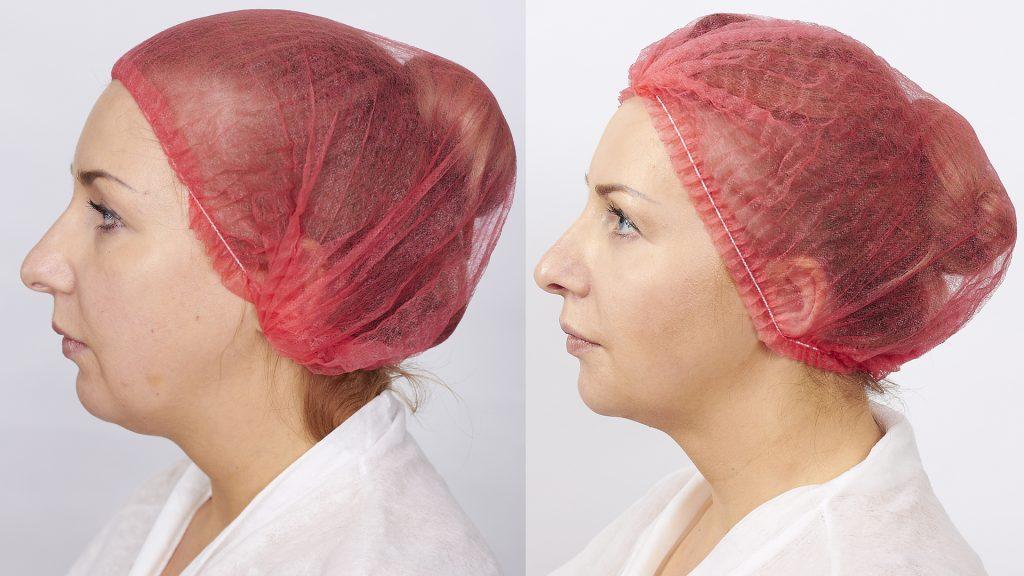 фото до и после процедуры Мезоскульпт С71