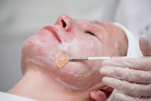 процедура кислотного пилинга лица