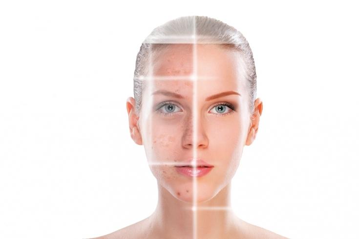 фото до и после кислотного пилинга лица