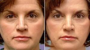 фото до и после биоревитализации кожи вокруг глаз