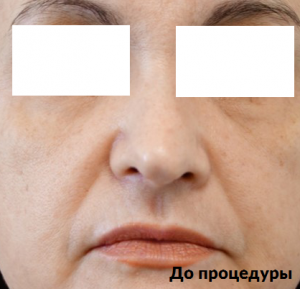 фото до и после процедуры ультраформер