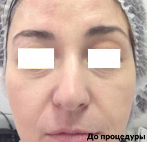 до и после ультраформер