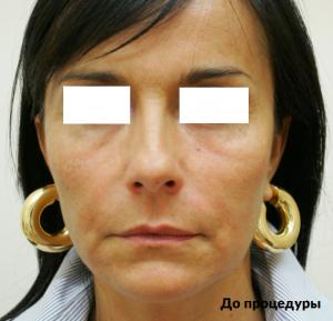 ультраформер - фото до и после
