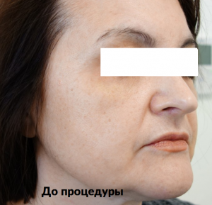 фото до ультраформера