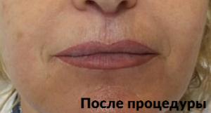 фото до и после лифтинга ультраформер