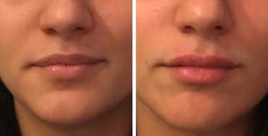 фото до и после процедуры с belotero